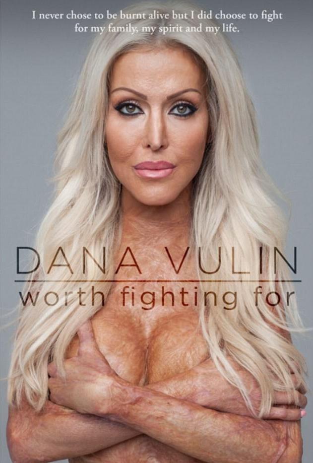Dana khoe cơ thể đầy những vết sẹo trên bìa tạp chí