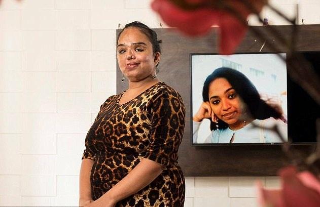 Sunitha đã phải trải qua nhiều cuộc phẫu thuật để có được khuôn mặt như hiện tại