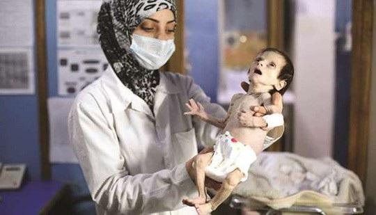 Một đứa trẻ bị suy dinh dưỡng nặng ở Ghouta. Ảnh: Gulf Times