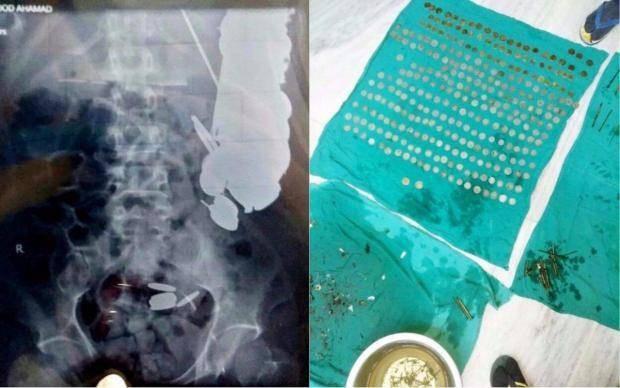 Bác sĩ gắp ra 263 đồng xu từ dạ dày bệnh nhân