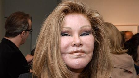 """Sau khi phẫu thuật thẩm mĩ, Jocelyn Wildenstein bất ngờ được mệnh danh là """"Catwoman"""". Tuy nhiên, ngôi sao này không hề quyến rũ, sexy được như nhân vật Catwoman trong loạt phim """"Người dơi"""" mà tên gọi này lại bắt nguồn từ gương mặt nửa giống người, nửa giống mèo của Wildenstein."""