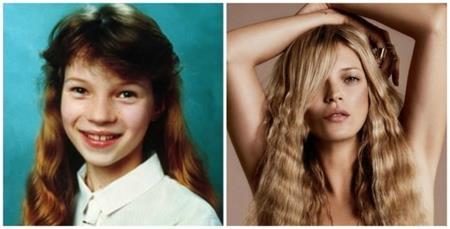 Liệu có mấy ai tinh tường nhận ra được rằng cô bé ở hình bên trái sau này lớn lên chính là biểu tượng của làng mẫu, Kate Moss?