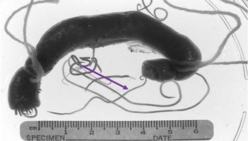 Giun đũa làm tổ lúc nhúc trong não vì nhà nuôi chó mèo - 1
