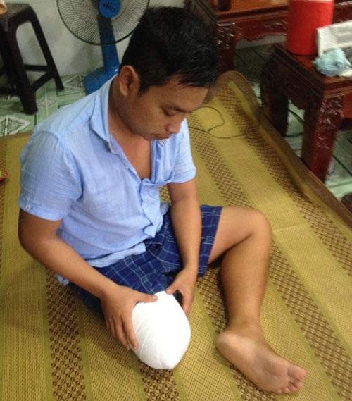 Lê Hoàng Lâm đã bị cưa 1/3 dưới đùi chân phải