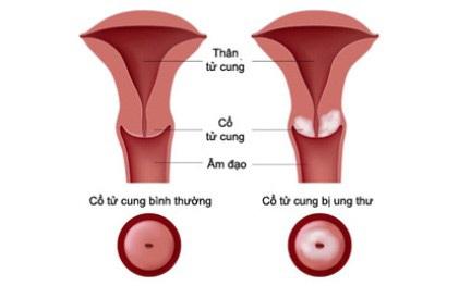 Sàng lọc sớm Ung thư cổ tử cung - Liệu có thực sự cần thiết? - 2