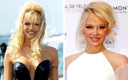 """""""Quả bom sex"""" Pamela Anderson đã có những dấu hiệu tuổi tác vô cùng rõ ràng trên khuôn mặt. Người đẹp này cũng từng muốn níu kéo tuổi xuân bằng việc tìm tới dao kéo nhưng rõ ràng, chẳng ai có thể mãi sexy, quyến rũ như thời con gái."""