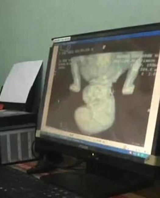 Bào thai đã phát triển đầy đủ răng, xương, tóc và hệ tiêu hóa