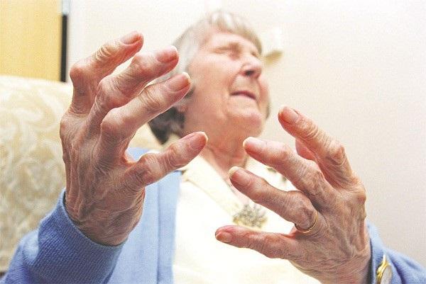 Viêm khớp dạng thấp có thể gây biến dạng khớp, co quắp các ngón tay