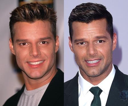 """Hồi năm 1999, sự nghiệp của Ricky Martin đã đạt đến đỉnh cao khi chàng ca sĩ điển trai cho ra mắt album solo thứ năm với một loạt các bản hit như """"Livin la Vida Loca"""", """"Shes all I ever had hay Shake your bon-bon"""". Hồi năm 2010, Ricky Martin đã công khai chuyện mình là người đồng tính và đã đính hôn với bạn trai Jwan Yosef vào cuối năm ngoái."""