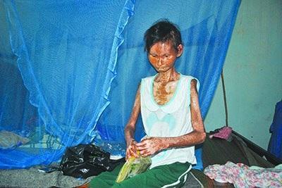 Sau hơn 10 năm mắc căn bệnh quái lạ, cơ thể chị Nâu chỉ còn da bọc xương.