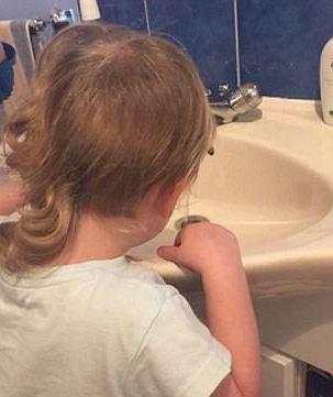 Mái tóc phát triển bất cân đối vì Isla hay giật tóc 1 bên