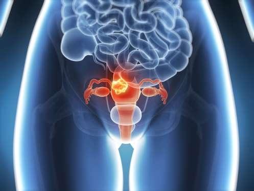 13 loại ung thư liên quan đến béo phì - 3