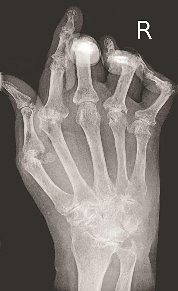 Chụp X- quang các khớp đau sẽ thấy có hình ảnh biến đổi xương