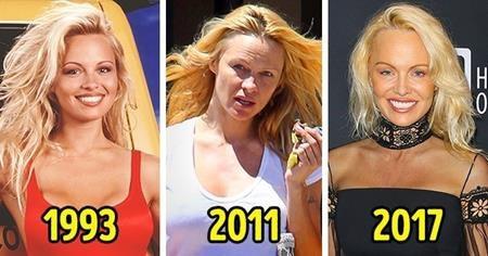 """Từ vị thế """"quả bom sex"""" trong những năm 90, Pamela Anderson lại lâm vào cảnh túng quẫn đến mức phải bán nhà để trả nợ thuế. May mắn là sau đó, Pamela Anderson dần lấy lại được danh tiếng và cũng rất tích cực làm từ thiện."""