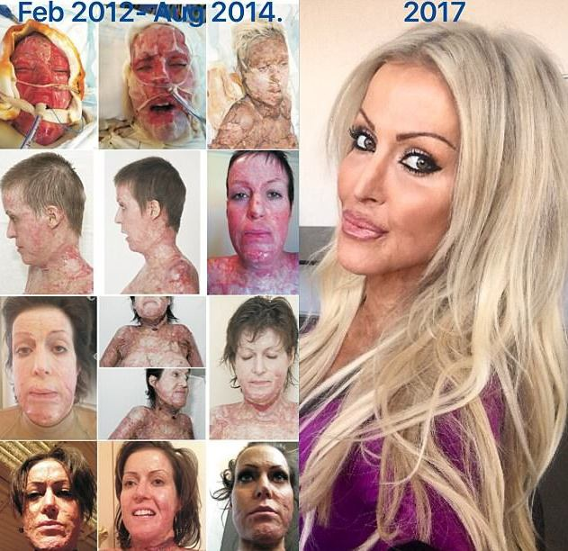Hành trình biến đổi nhan sắc từ năm 2012 đến năm 2017 của Dana