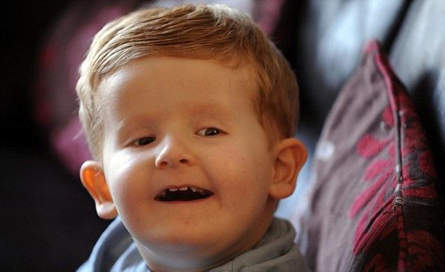 Cậu bé có dãy DNA mà các bác sĩ chưa nghe nói đến bao giờ