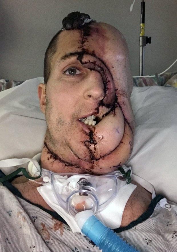 Hình ảnh của Tim vài giờ sau ca phẫu thuật cấy ghép