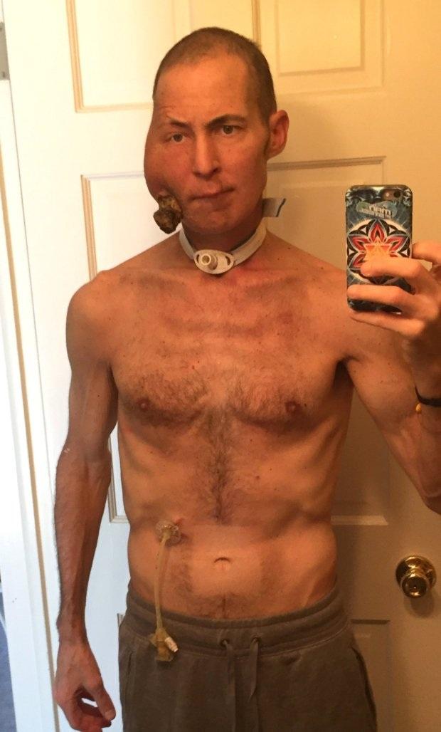 Từ tháng 5/2015, khối u bắt đầu tăng trưởng và Tim đã phải sử dụng ống dẫn thức ăn