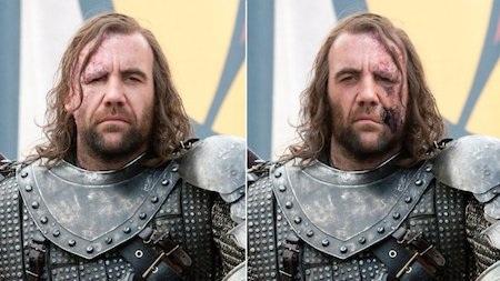 """Vết sẹo trên gương mặt nhân vật """"Chó săn"""" Sandor Clegane đã được dịch chuyển từ trái sang phải khi lên phim"""