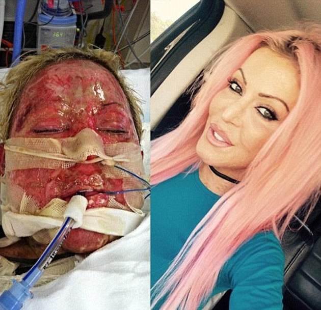 Để xinh đẹp trở lại, cô đã phải tiến hành 200 cuộc phẫu thuật lớn nhỏ