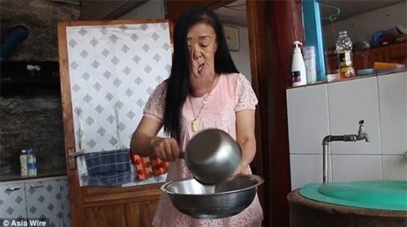Căn bệnh u sợi thần kinh quái ác đã khiến khuôn mặt cô Liu bị biến dạng hoàn toàn.