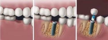 Phương pháp cấy ghép răng Implant phục hồi răng mất