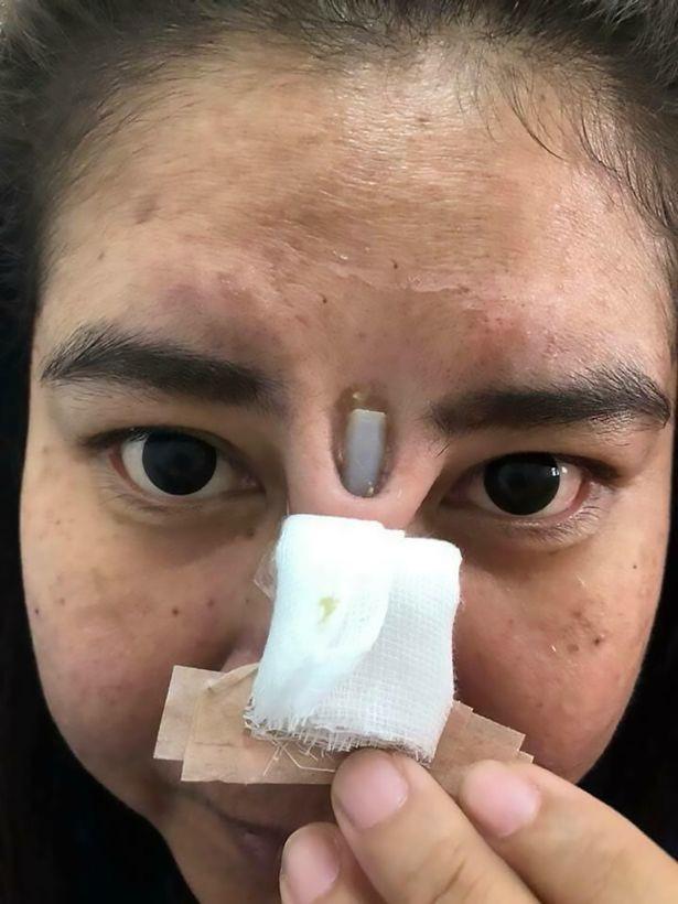 Kinh hoàng silicon nâng mũi chồi ra giữa 2 mắt - 2