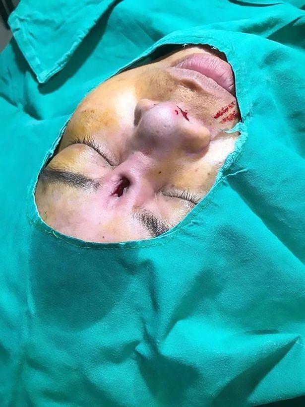 Kinh hoàng silicon nâng mũi chồi ra giữa 2 mắt - 3