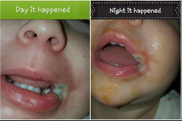 Vết bỏng trên miệng của bé gái 19 tháng tuổi trong ngày xảy ra vụ việc
