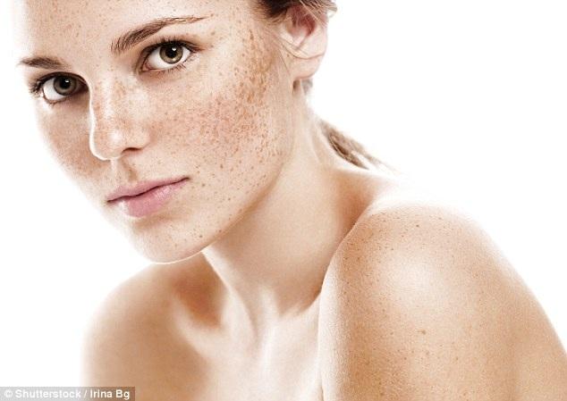 Tăng sắc tố, tàn nhang và da không đều màu đều có thể do tổn thương ôxy hóa và mất cân bằng hooc môn