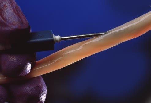 Những điều cần biết về ghép tế bào gốc điều trị ung thư máu - 5