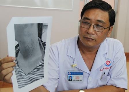 BS Khanh và hình ảnh người bệnh bị biến chứng sau khi làm đẹp ở Spa