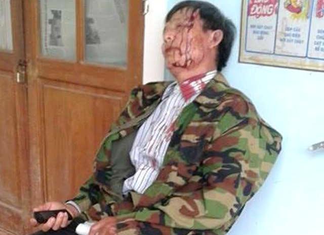 Ông Văn Đức Nguyên bị đánh sau buổi làm việc với Trưởng Công an xã Phong Xuân, huyện Phong Điền, tỉnh Thừa Thiên Huế (ảnh V.H)