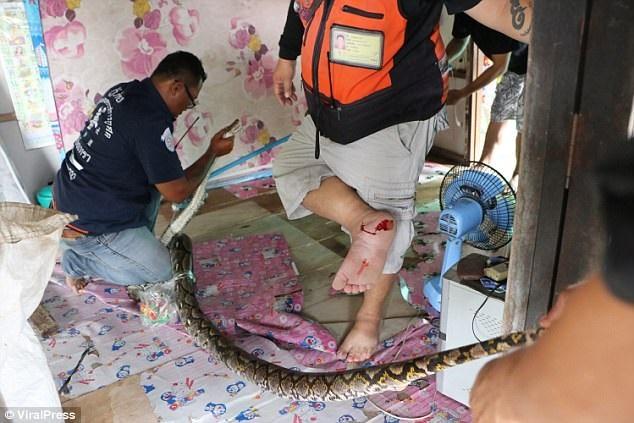 Nhân viên cứu hộ Danu bị con trăn cắn vào chân. (Nguồn: ViralPress)