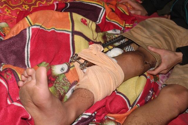Đôi chân của em Nguyễn Kim Tú đã được cứu chữa - 1