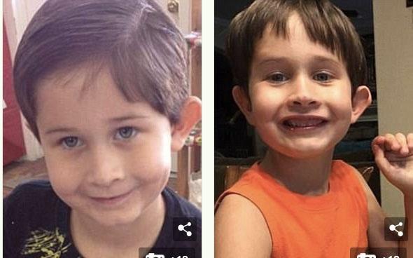 Brock Fleming (thời điểm trước và sau khi phát hiện ung thư) phát hiện mắc bệnh DIPG vào tháng Năm 2016. Cậu bé sống thêm chưa đầy 1 năm và mất vào tháng 12 khi mới 7 tuổi.
