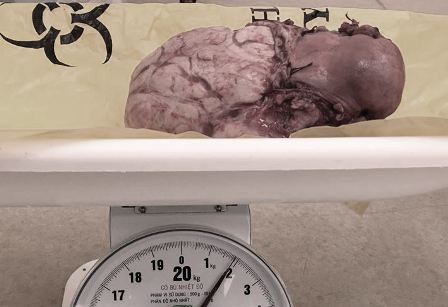 Khối u xơ tử cung trọng lượng gần 2kg được bóc tách ra khỏi cơ thể người bệnh