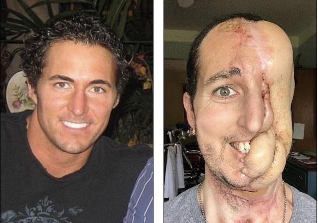 Sợ phẫu thuật, mất nửa mặt vì ung thư mô mềm - 1