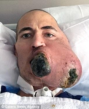 Sợ phẫu thuật, mất nửa mặt vì ung thư mô mềm - 2