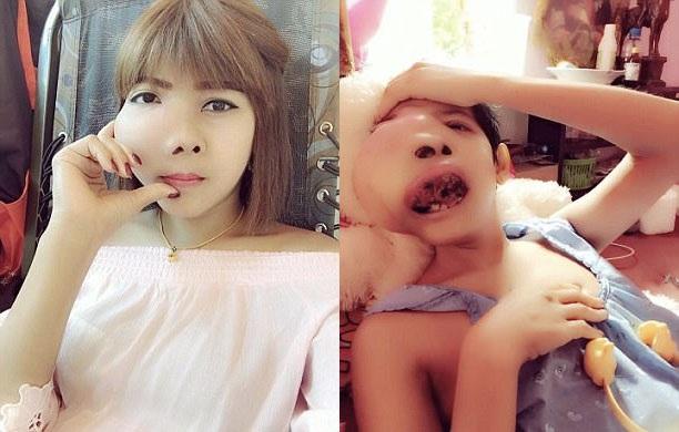 Tưởng đau răng hóa ung thư hàm - 1