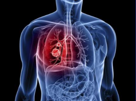 Ung thư phổi là 1 trong 5 căn bệnh ung thư thường gặp nhất tại Việt Nam
