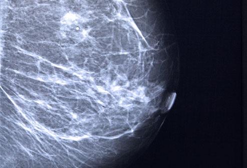 Những cách phát hiện ung thư vú hiệu quả - 4