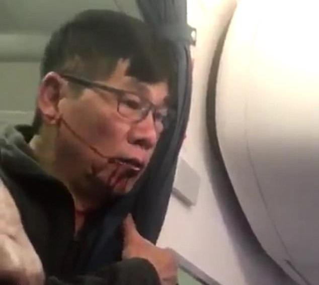Máu chảy trên mặt người đàn ông bị kéo khỏi máy bay trước sự chứng kiến của nhiều hành khách. (Ảnh: Twitter)