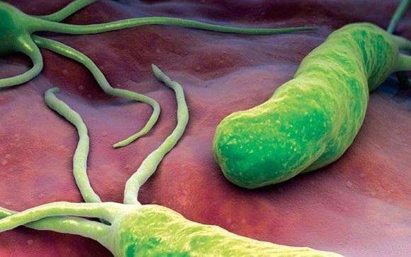 Vi khuẩn Helicobacter pylori (HP), một trong những tác nhân dễ gây tổn thương viêm, loét dạ dày tá tràng, thậm chí dẫn tới ung thư dạ dày