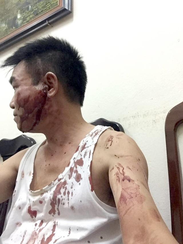 Sau khi bị đánh, người ông Lê Văn Hải bê bết máu