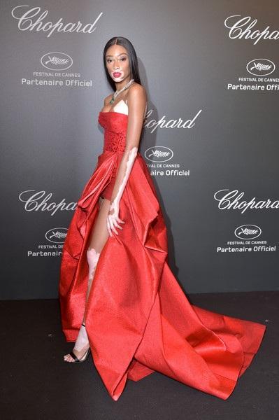 Người mẫu bị bạch biến là khách mời quan trọng của LHP Cannes lần thứ 70
