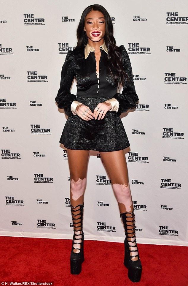 Winnie Harlow sành điệu khoe chân dài trong sự kiện tại New York ngày 21/4 vừa qua