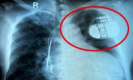 Máy tạo nhịp tim được đặt vào cơ thể người bệnh để dự phòng nguy cơ đột tử (ảnh minh họa)