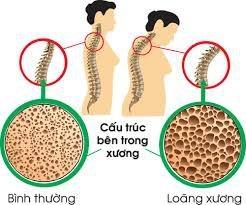 Canxi, vitamin D và tập luyện làm giảm nguy cơ loãng xương - 1