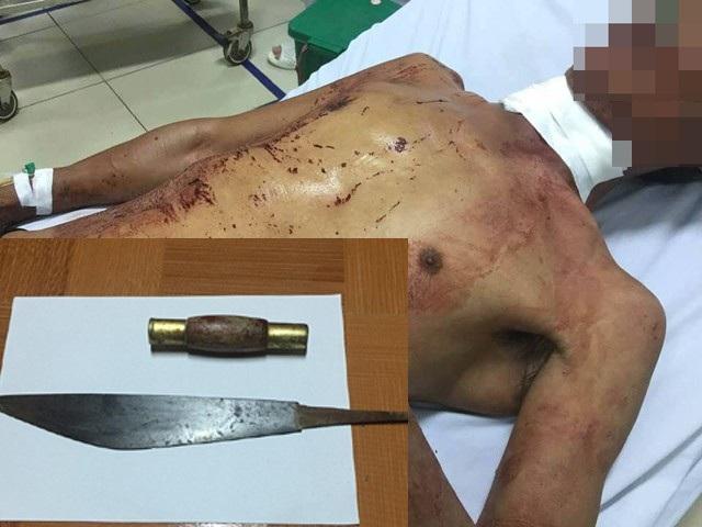 Ông Tường được đưa đến bệnh viện cấp cứu trong tình trạng đa chấn thương, trong có có chết chém gây đứt động mạch cổ (ảnh lớn). Chiếc dao đã bị sụt cán khi Từ Trọng Hóa chém nạn nhân.
